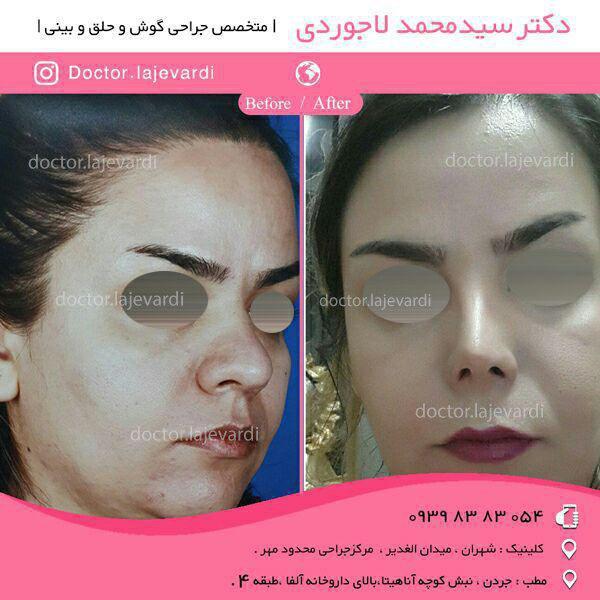 جراحی بینی - دکتر لاجوردی