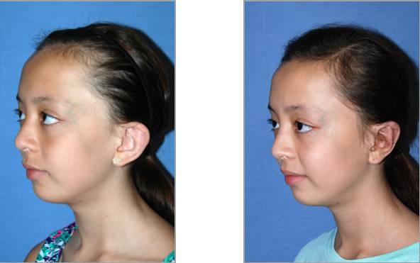 FireShot Capture 43 – Ear Plastic Surgery I Otoplasty Before_ – http___www.drphilipyoung.com_ear-p