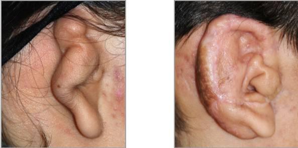 FireShot Capture 46 – Ear Plastic Surgery I Otoplasty Before_ – http___www.drphilipyoung.com_ear-p