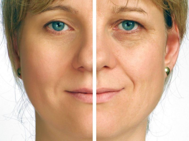what-is-laser-blepharoplasty