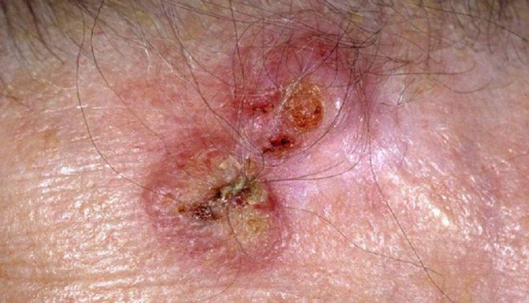 سرطان سلول هاى اسكواموس