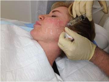 تزریق بی حسی موضعی جهت عمل لیفت صورت با نخ
