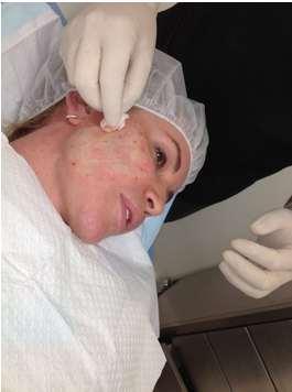 پاکسازی پوست بعد از لیفت صورت