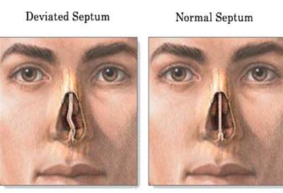 nasal-septum-deviated-crop-u5363