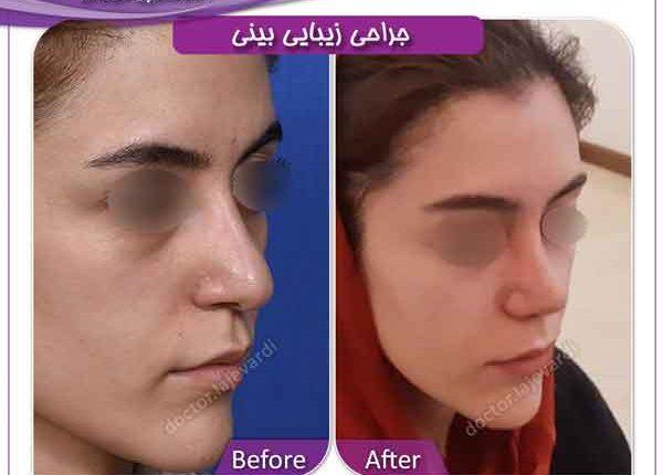 جراحی بینی 206