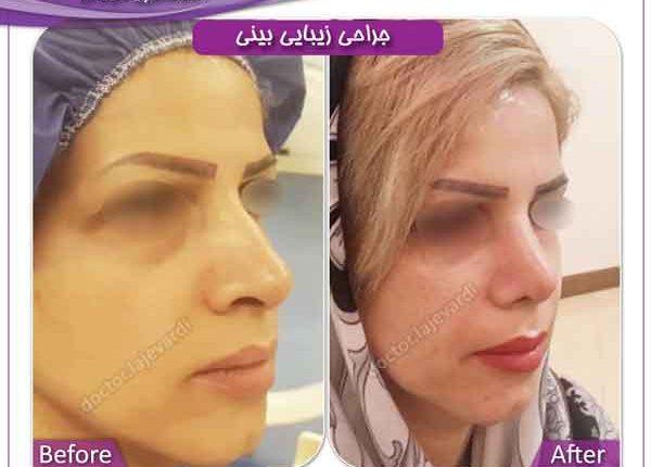 جراحی بینی 207
