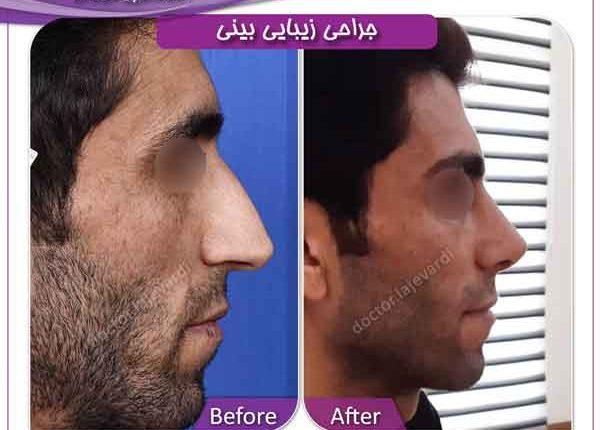 جراحی بینی 208