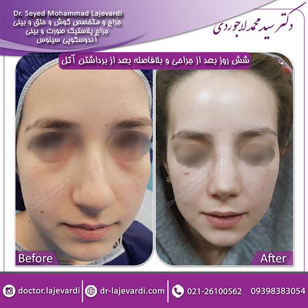 جراحی-بینی-60