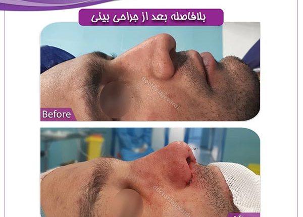 جراحی-بینی-61