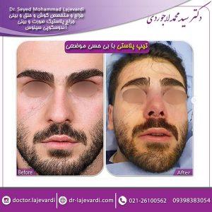 تیپ پلاستی یا جراحی نوک بینی