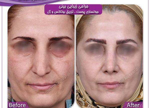 جراحی بینی و جوانسازی پوست 1