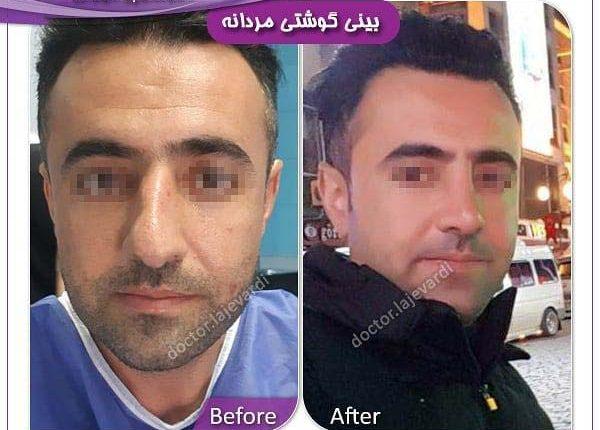 جراحی بینی 12