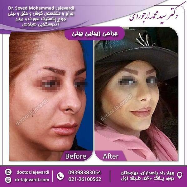 جراحی بینی 14