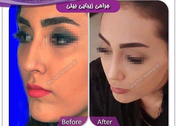 جراحی بینی 24