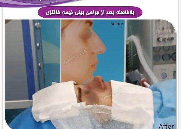 جراحی بینی 25