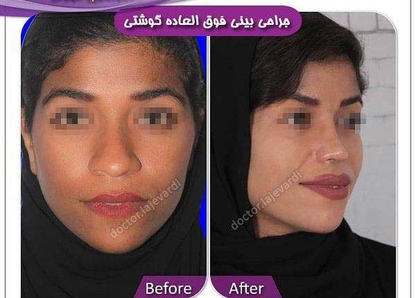 جراحی بینی 26