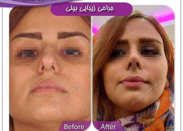 جراحی بینی 33