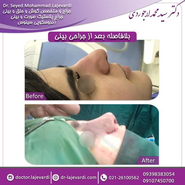 جراحی بینی 85