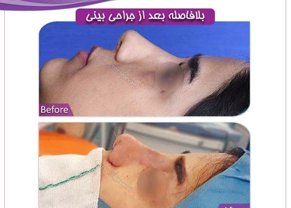 جراحی بینی 87