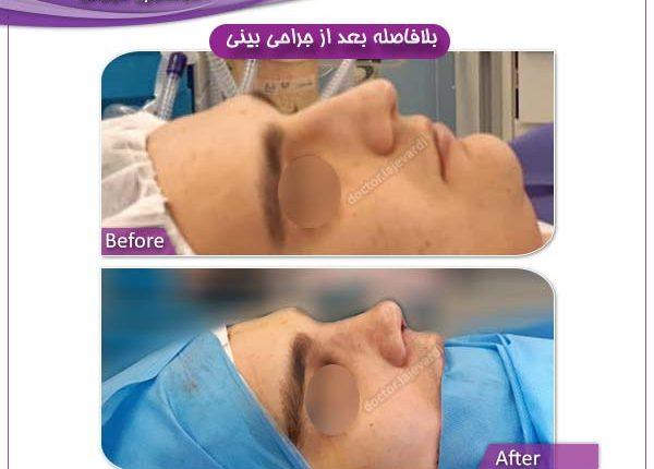 جراحی بینی 93