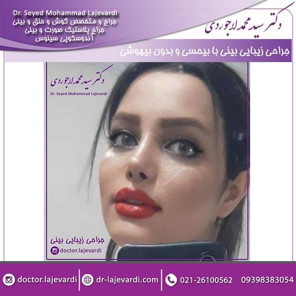 جراحی زیبایی بینی با بیحسی و بدون بیهوشی