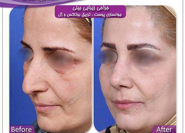 جراحی بینی و جوانسازی پوست 2