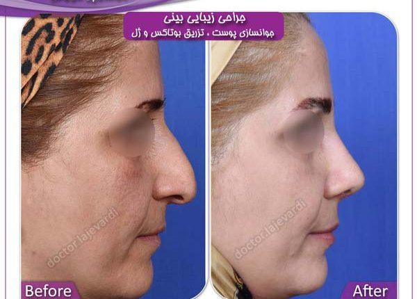 جراحی بینی و جوانسازی پوست 3