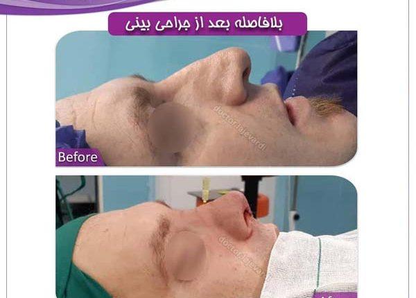 جراحی بینی 78