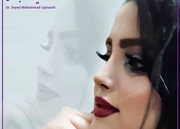 جراحی زیبایی بینی 14