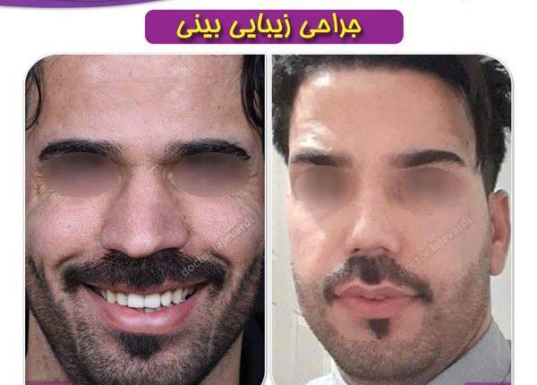 جراحی بینی 100