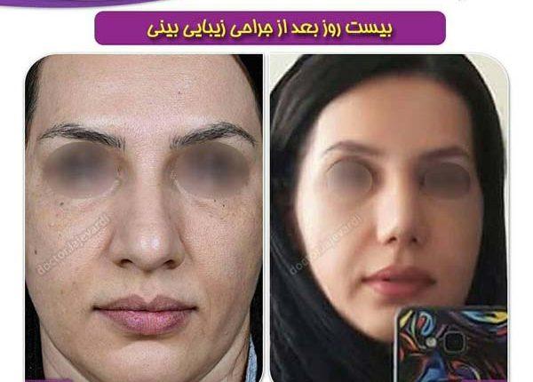 جراحی بینی 106