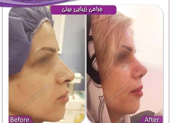 جراحی بینی 67