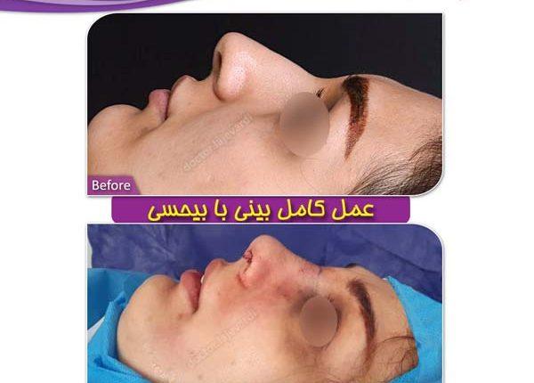 جراحی بینی 94