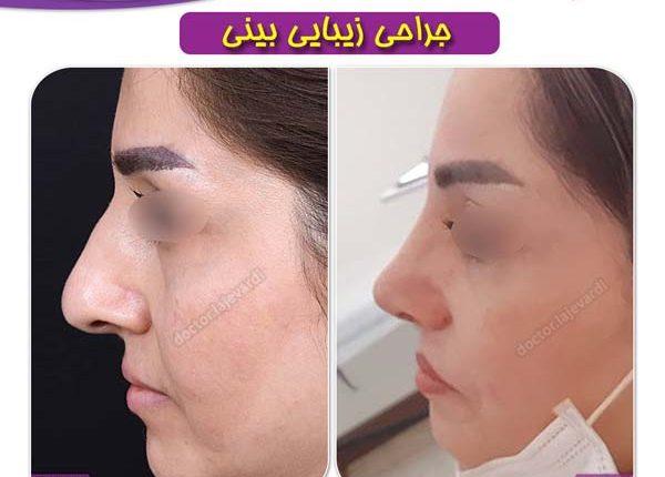جراحی بینی 97