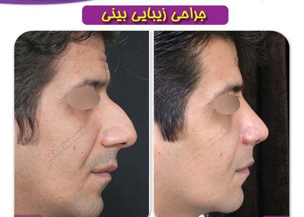 جراحی بینی 98