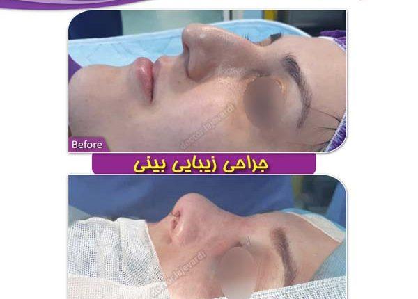 جراحی بینی 99