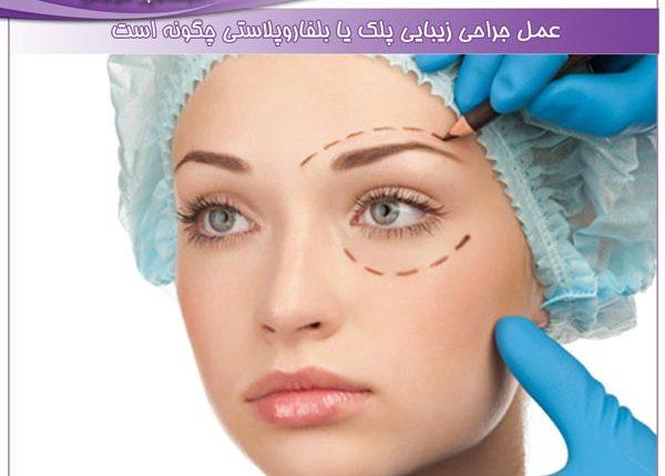 عمل جراحی زیبایی پلک یا بلفاروپلاستی چگونه است