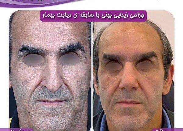 جراحی بینی 122-1
