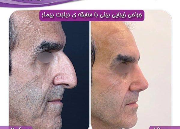 جراحی بینی 122-3
